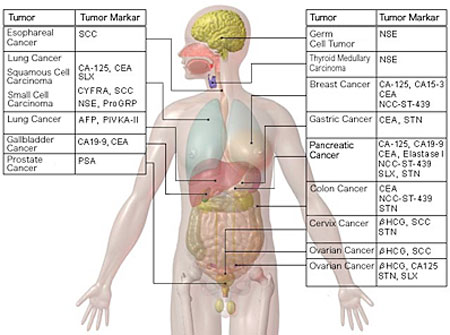 Elevated breast cancer tumor markers